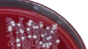 Snapshot 08.06.2021 Phylogica: Superbugs – Eine Gefahr, der man mit neuartigen Antibiotika begegnen kann?